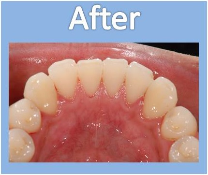 歯のクリーニングアフター