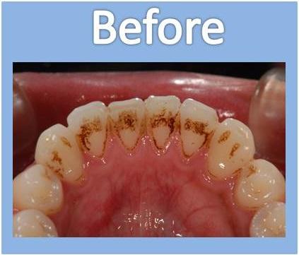 歯のクリーニングビフォー